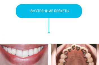 vidiniaibreketai ru4