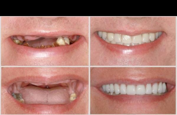 Dantų implantavimas prieš ir po