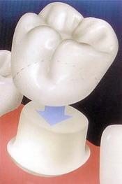 dantu vainikeliai