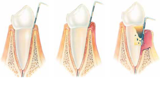periodontologija3